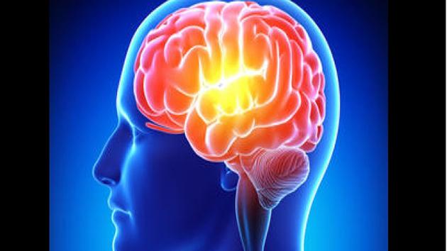Bệnh Parkinson là một phần nguyên nhân gây bệnh Alzheimer
