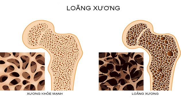 Thiếu canxi là nguyên nhân chủ yếu gây loãng xương