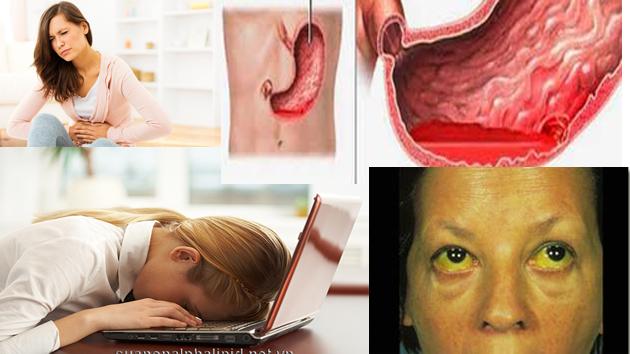 mệt mỏi, khó chịu ở vùng bụng, nếu bị viêm gan bạn kém ăn hơn, sụt cân, xuất huyết bao tử, vàng da, vàng mắt