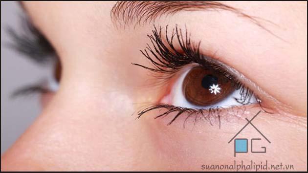 Biến chứng mắt ở bệnh nhân tiểu đường