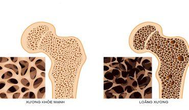 Thiếu canxi là nguyên nhân chính gây loãng xương