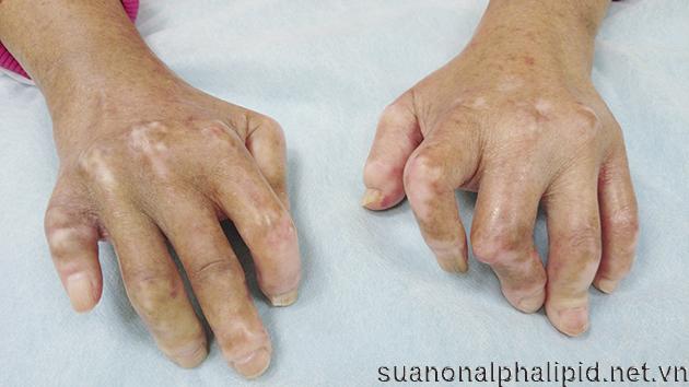 Đôi khi người bệnh tiểu đường xuất hiện những lớp da dày, cứng trên lưng bàn tay, ngón chân, trán, các khớp trở nên cứng và không thể cử động theo ý của mình, có thể cả đầu gối, mắt cá chân hoặc khuỷu tay cũng bị