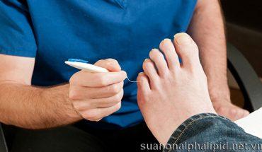 Ngăn chặn các biến chứng tiểu đường ở chân