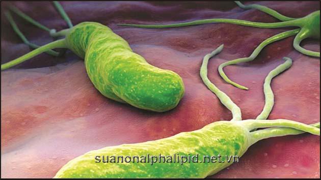 nhiem Helicobacter-pylori-HP gay ung thư dạ dày